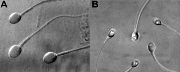A: Normal sperm; B: Abnormal sperm (large nuclear vacuoles can be observed)