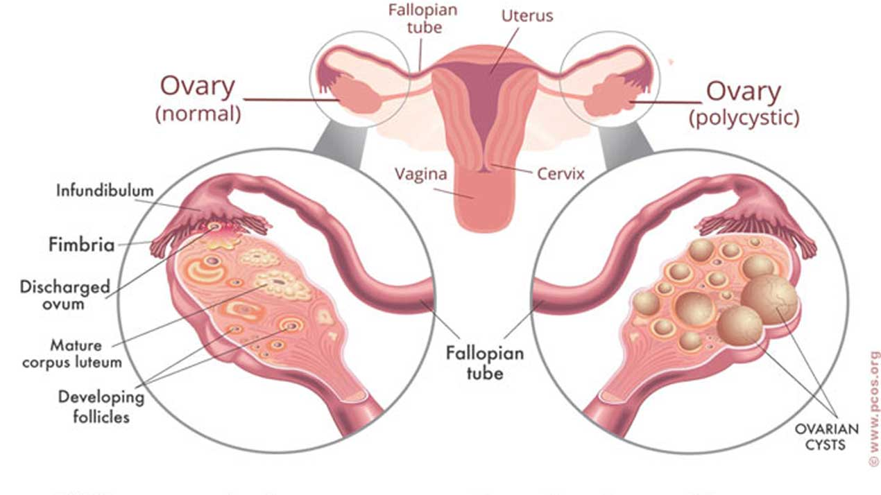 The anatomy of PCOS